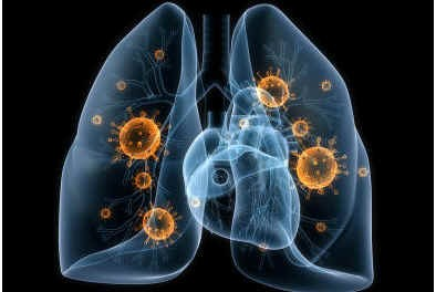 is-bacterial-pneumonia-contagious