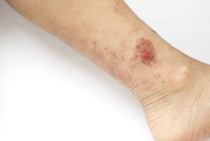 What Does Eczema Look Like?