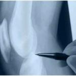 What Is Infrapatellar Bursitis?