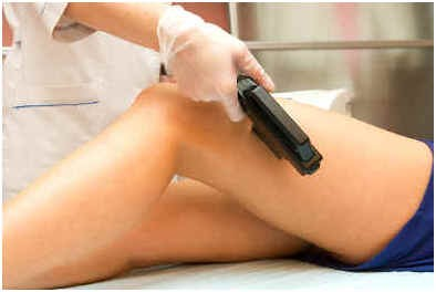 what-to-expect-after-laser-hair-removal