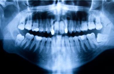Are My Wisdom Teeth Impacted?