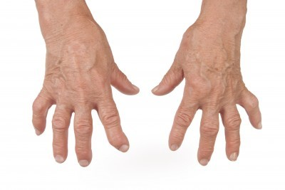 Does Arthritis Cause Swelling?