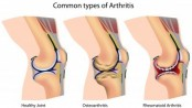 What Are the Most Common Types of Arthritis?