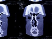 What Are the Symptoms of a Sinus Infection in an Adult?